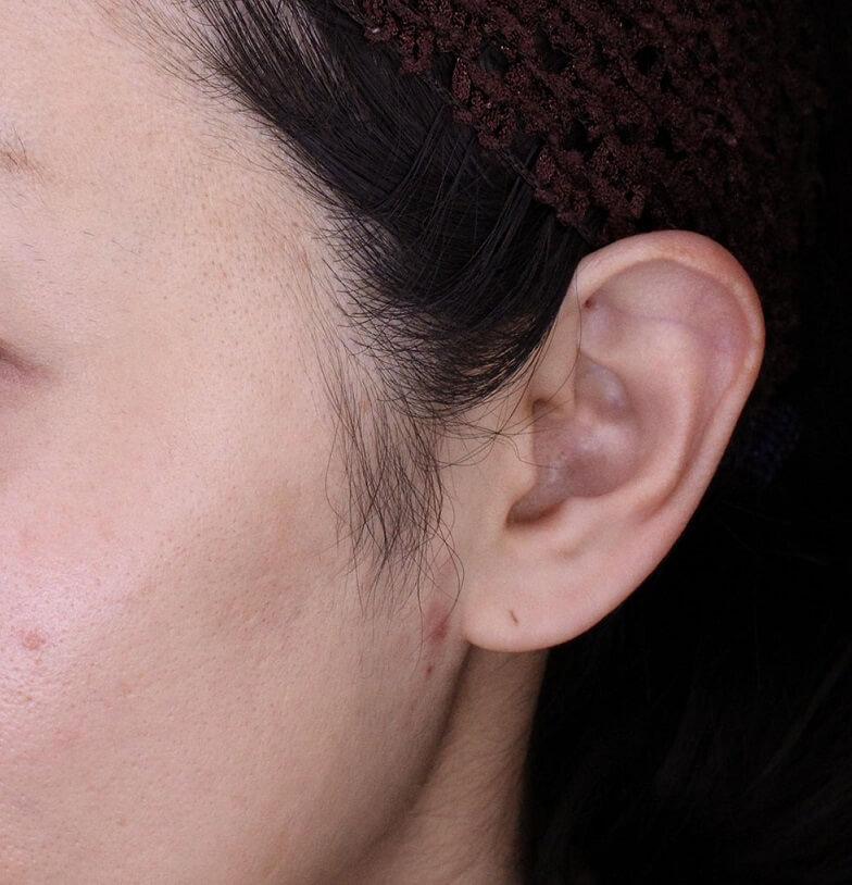 立ち耳修正治療のご紹介