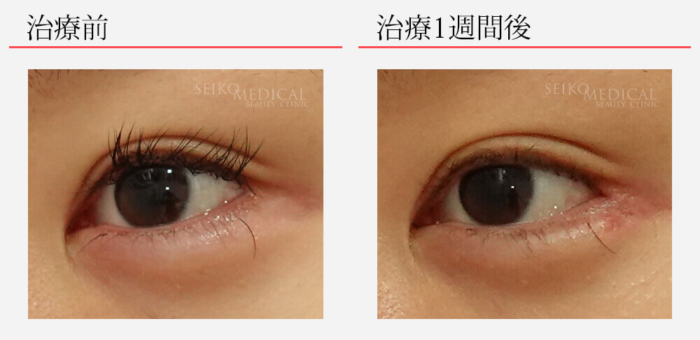 目尻靱帯移動術 目尻切開 切らないたれ目形成術