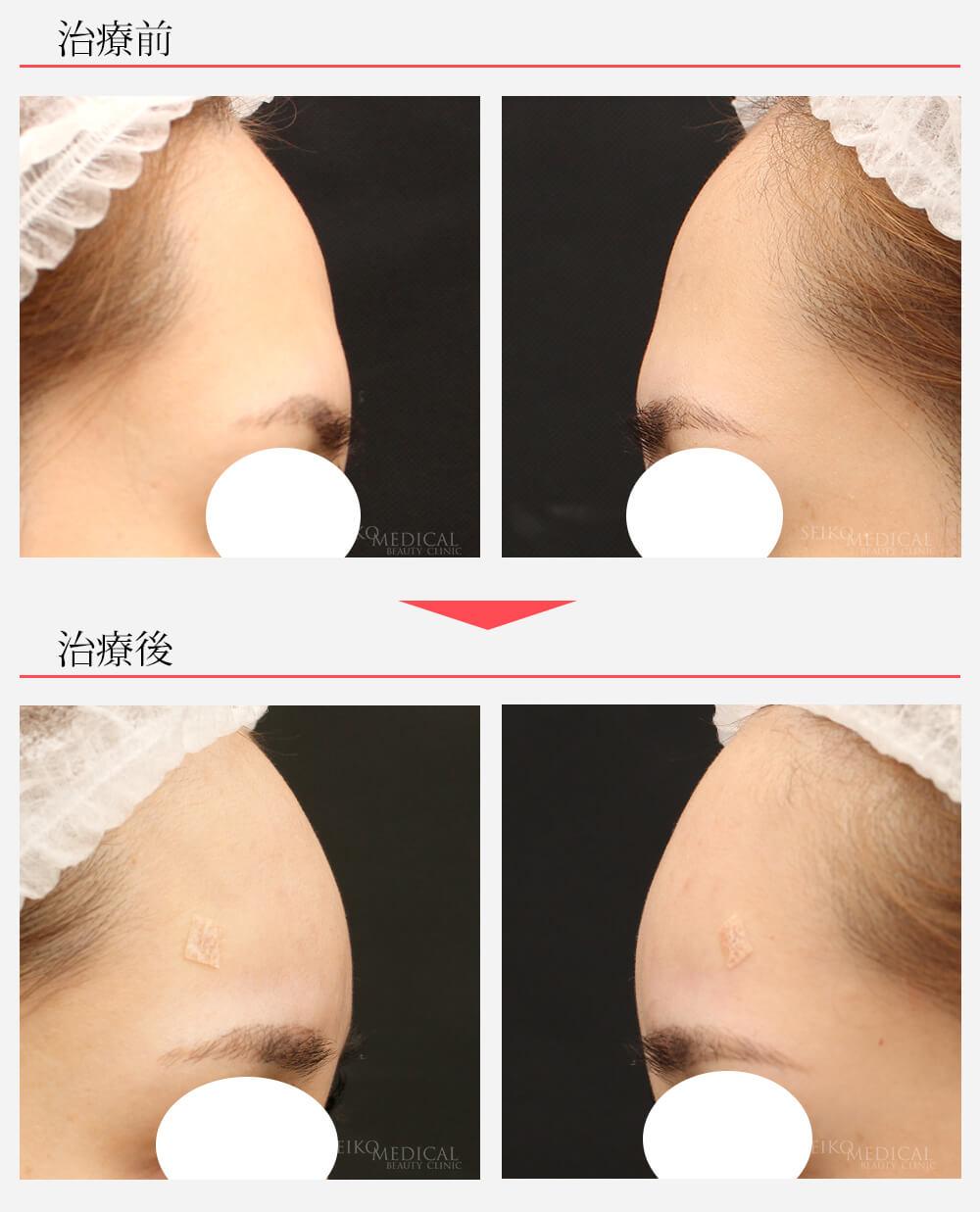 糸によるリフトと額(おでこ)のヒアルロン酸注入による顔を立体的に美しくする治療