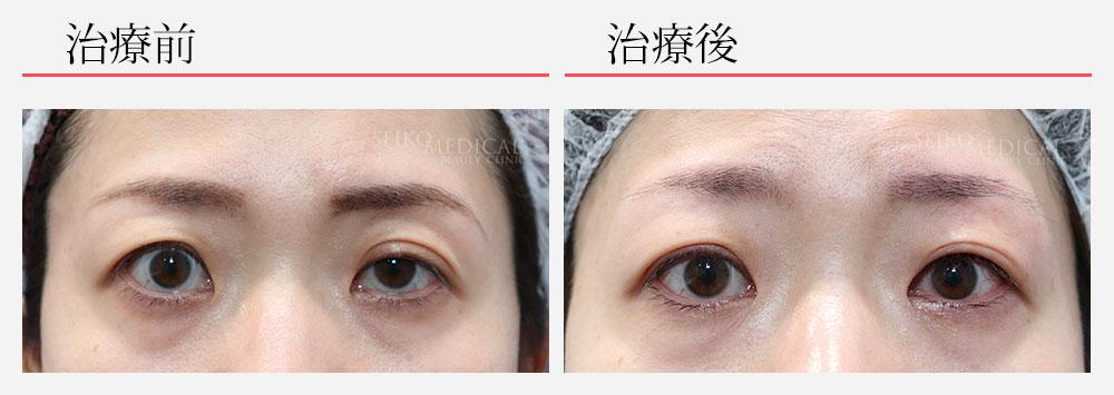 片側の眼瞼下垂症の症例解説