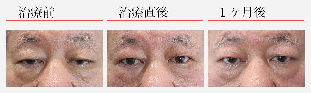 眼瞼下垂の症例解説