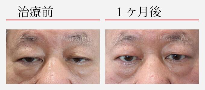 眼瞼下垂症の治療経過写真(1ヶ月後)