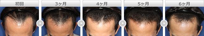 毛髪再生療法+ヘアリバイバル+ロゲイン