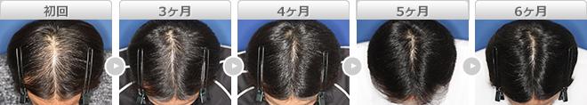 毛髪再生療法 ヘアリバイバル ロゲインフォーム