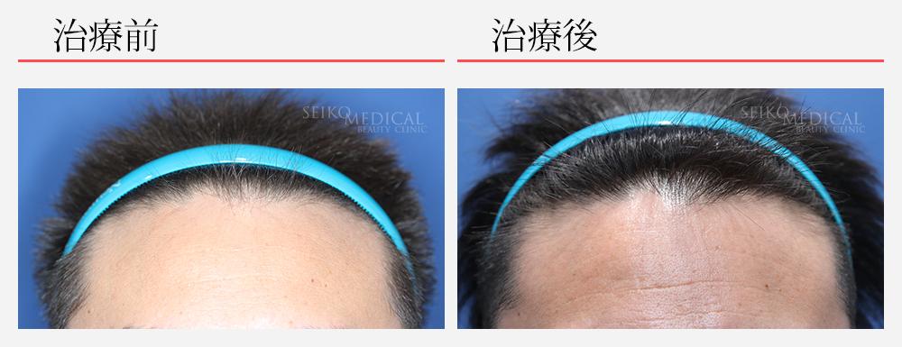毛髪再生療法 ヘアリバイバル