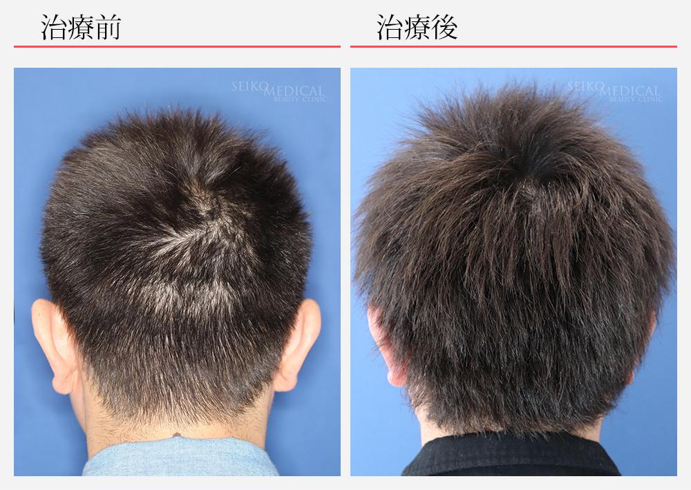 毛髪再生療法症例写真