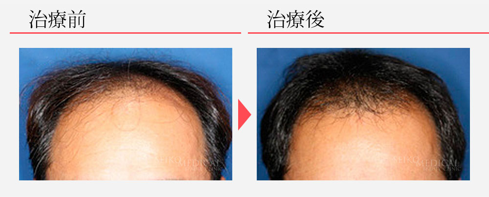 毛髪再生療法+ヘアリバイバル