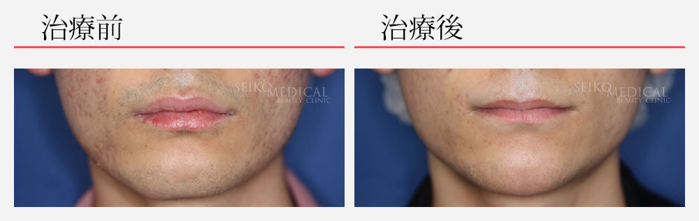 顎 ヒアルロン酸注入0.3cc