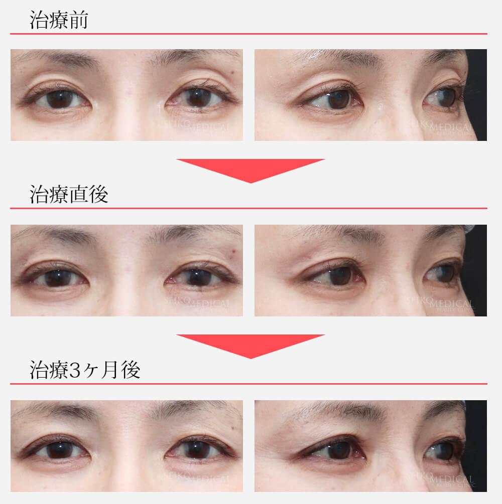 くぼみ目へのヒアルロン酸注入9ヶ月後(動画あり)