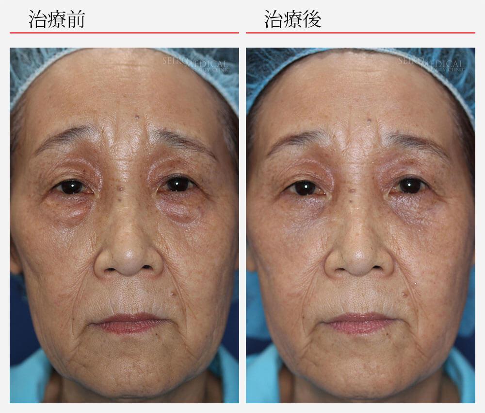 【下眼瞼の脂肪除去のみを行った症例解説】下眼瞼のたるみと脂肪突出が強いため、本来であれ…