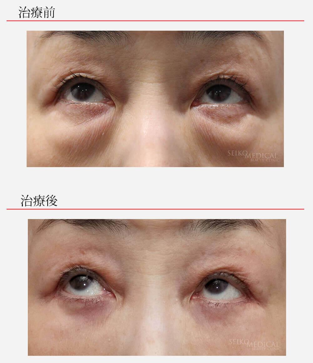 下眼瞼脂肪除去 脂肪注入 目の下の皮膚切除