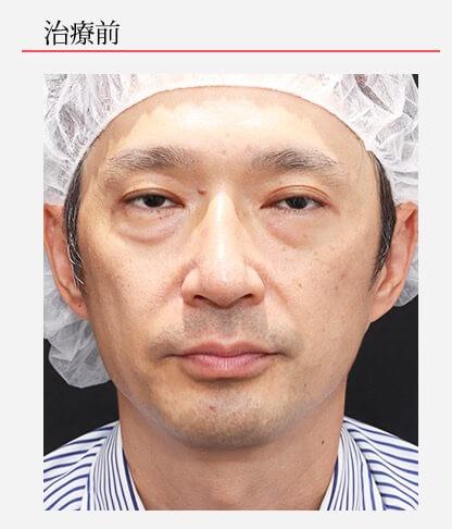 【下眼瞼の脂肪除去、ヒアルロン酸注入】の顔出しモニターさん症例解説(YouTube動画あり)