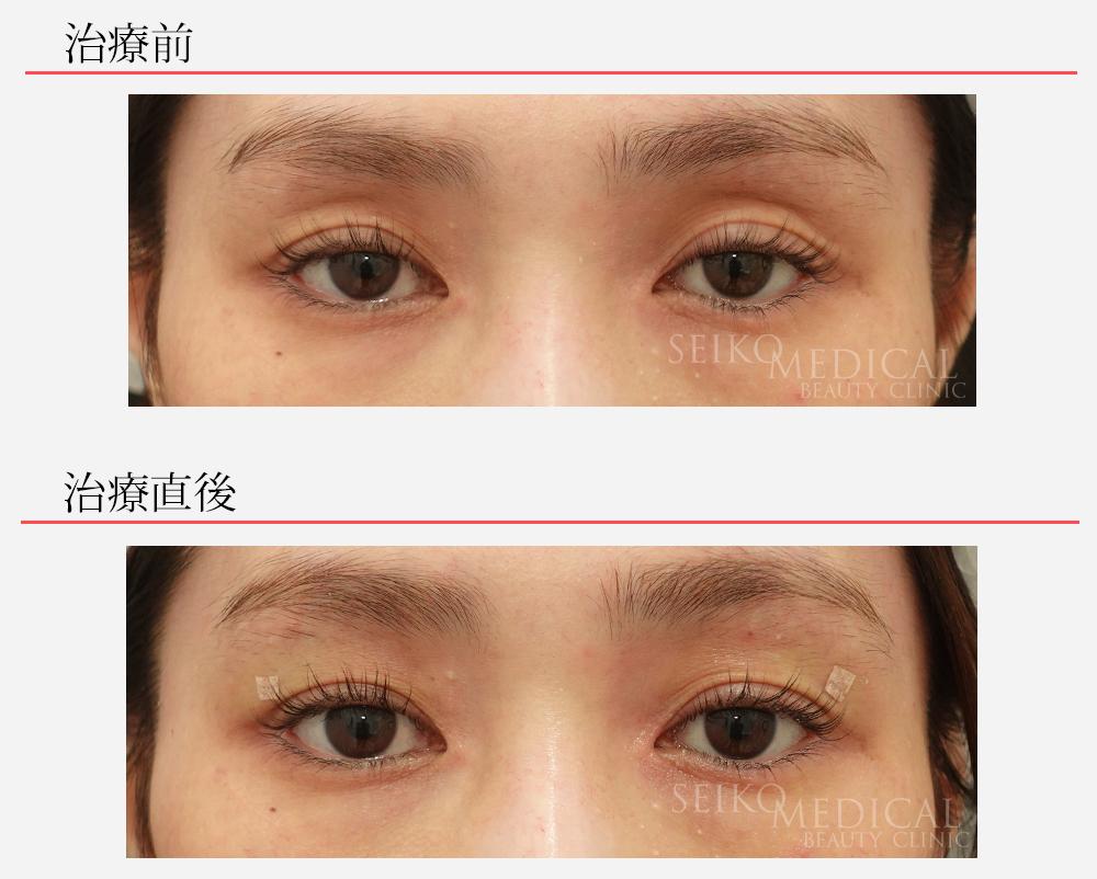 くぼみ目ヒアルロン酸症例写真01