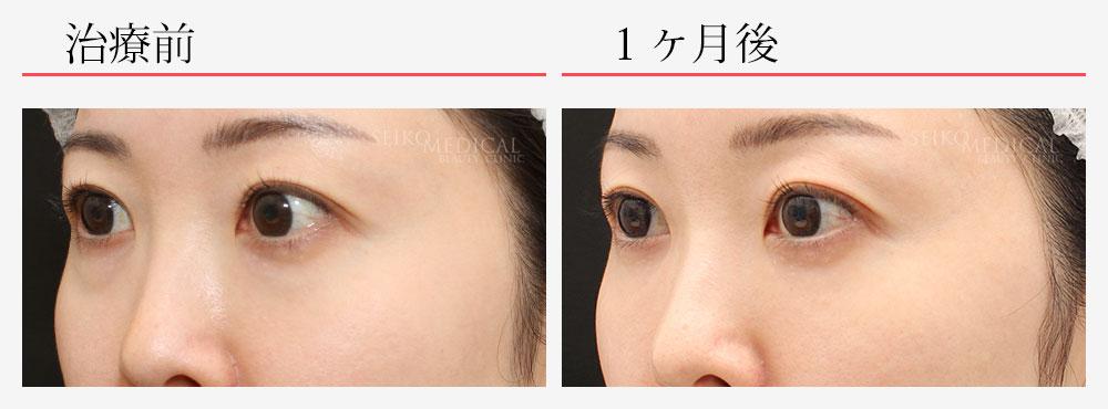 下眼瞼脂肪除去 脂肪注入