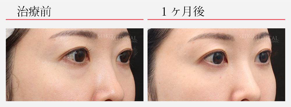 下眼瞼脂肪除去 脂肪注入 マイクロファット ナノファット