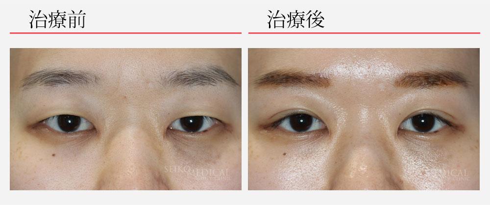 眉毛の位置も下がって自然な二重の症例