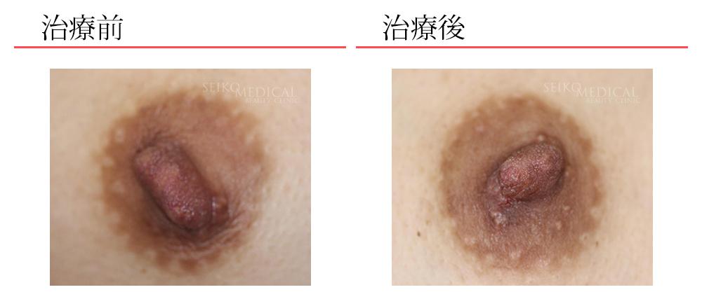 乳頭縮小術症例1