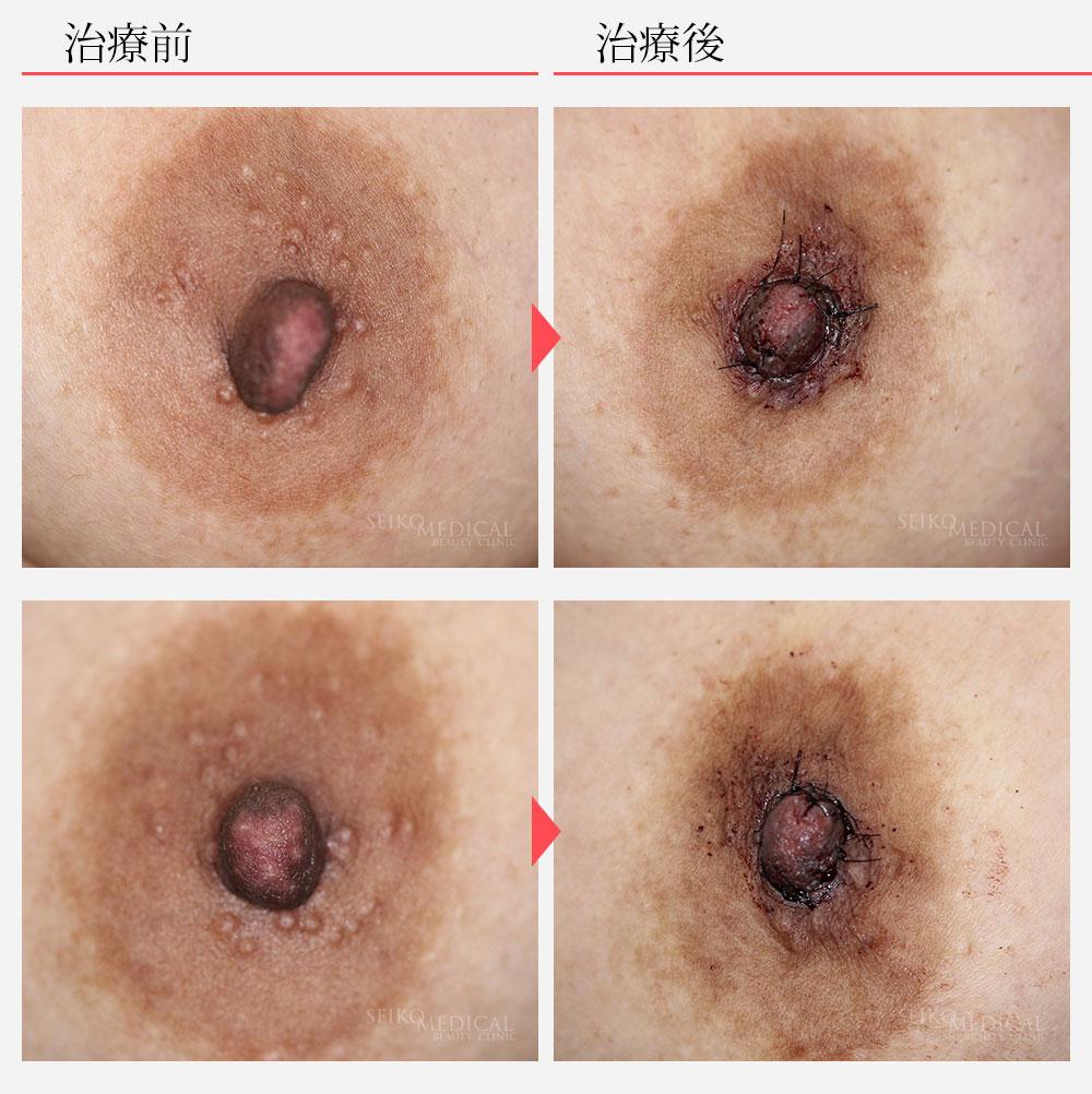 乳頭縮小術症例2