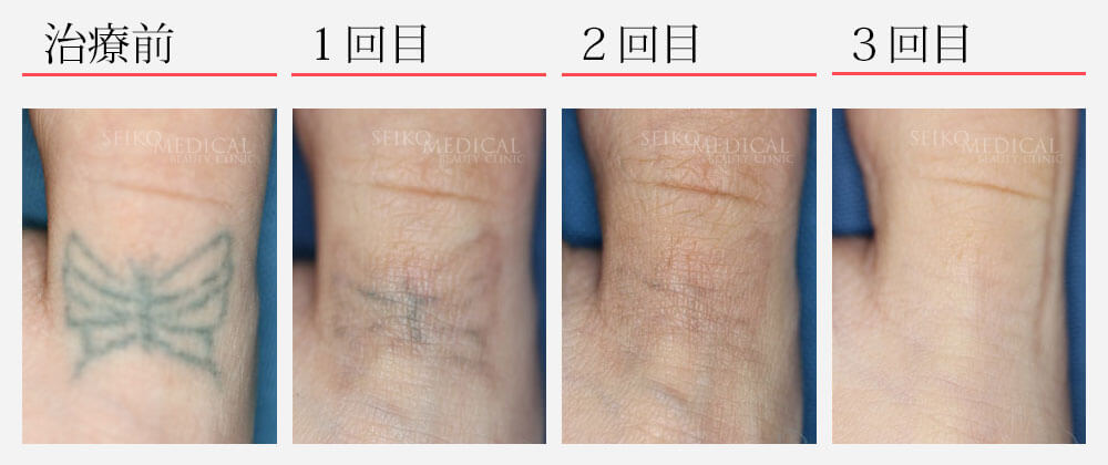 tattoo除去治療