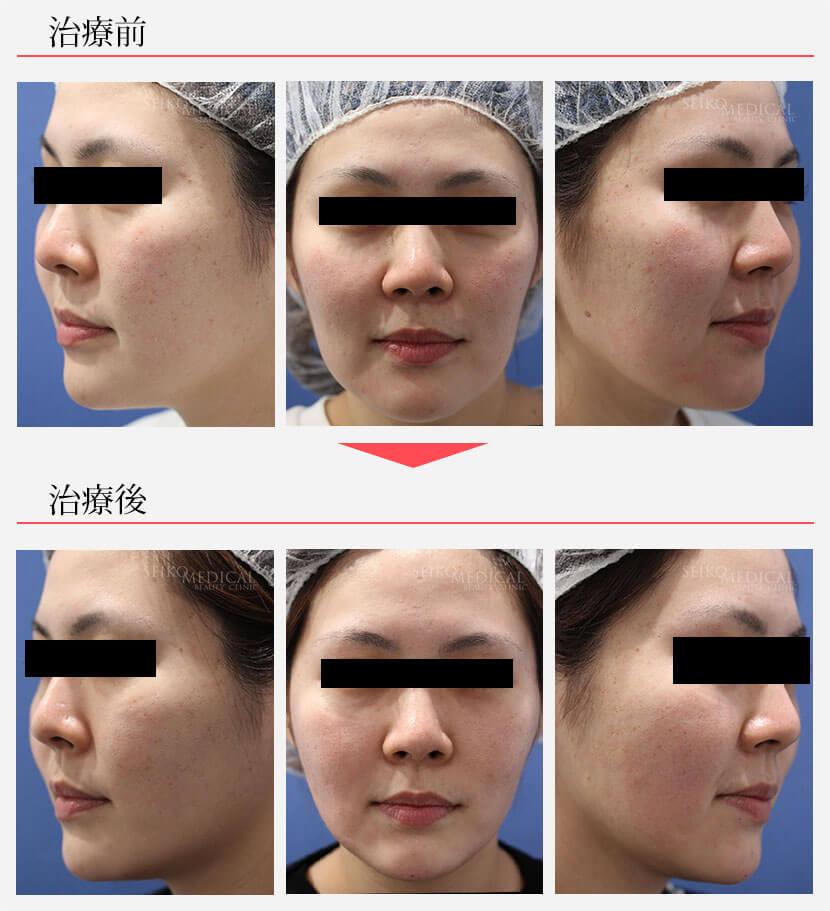 頬のスレッドリフト治療