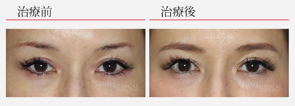 タレ目形成術の症例