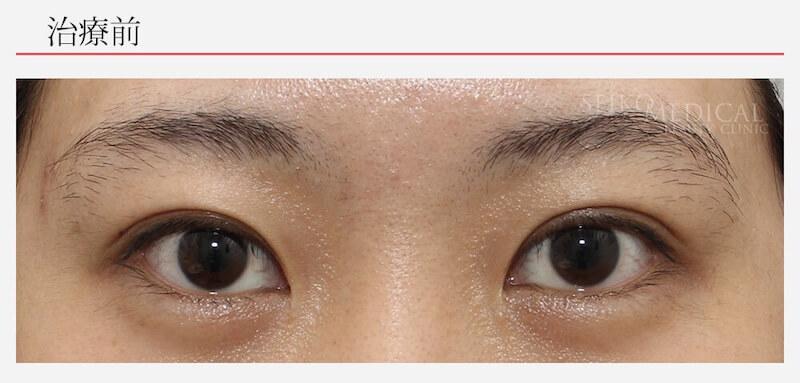 左右差のある垂れ目形成術の症例解説