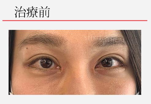 たれ目というよりは言うよりは自然に目を大きく。たれ目形成術(下眼瞼下制術)モニターさん