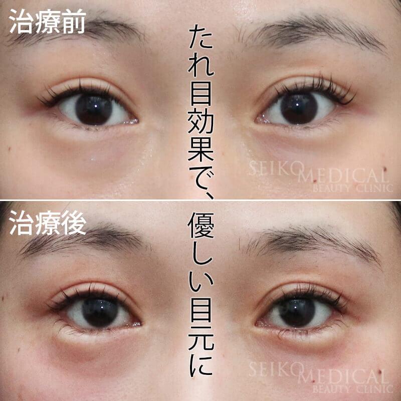 切らないたれ目形成術 たれ目効果で優しい目元に