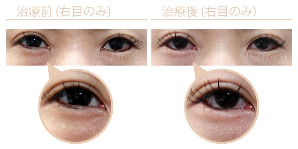切らないたれ目形成術(右目のみ) 他院治療後修正