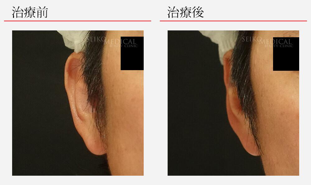 【立ち耳治療】片耳だけバランスを取るよう切らない埋没法で治療した症例