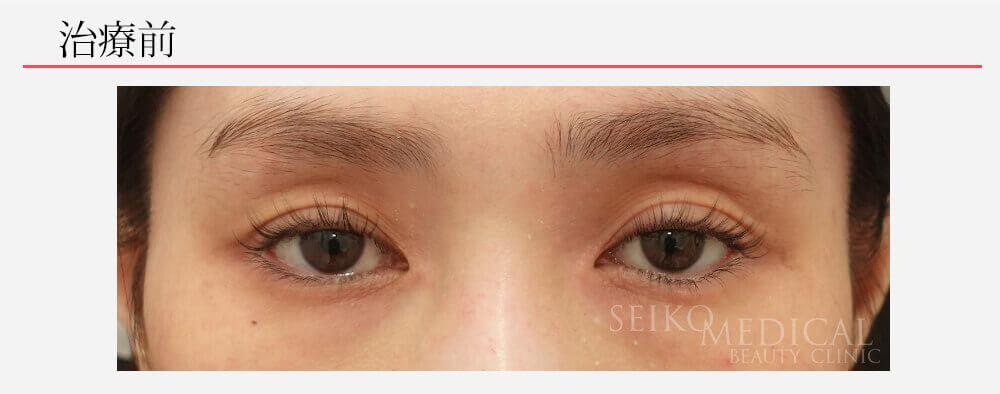 くぼみ目への凸凹にならないヒアルロン酸注入(動画あり)