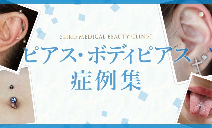 【YouTube『Dr.聖子チャンネル』】ピアス・ボディピアスの症例集を公開しました。
